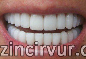 Lamina diş fiyatları, diş hekimi, lamina diş kaplamaları