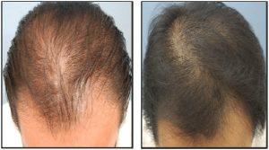 saç ekim merkezi, en iyi saç ekimi merkezleri
