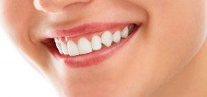 lamine diş fiyatı, lamine diş yaptırma, lamine diş fiyatları ne kadar