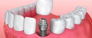 implant fiyatları, implant yaptırma, istanbul implant