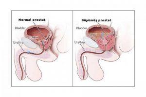prostat büyümesi, prostat sorunları, prostat tedavisi